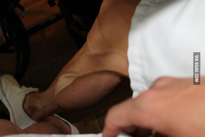 This is the leg of an Olympic runner.