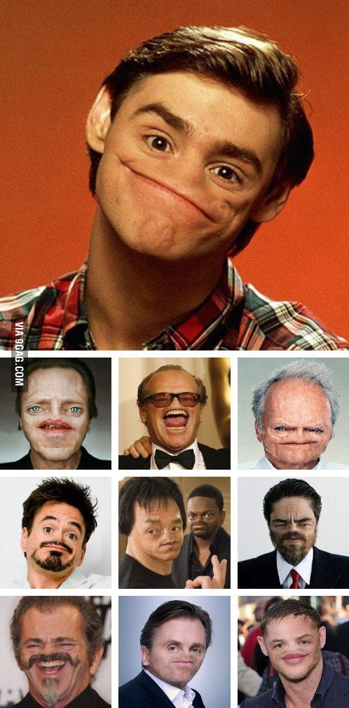 Celebrities without nose