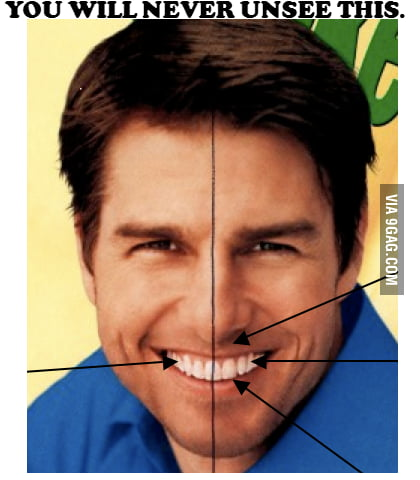 Tom Cruise has a tooth at the exact center of his face.