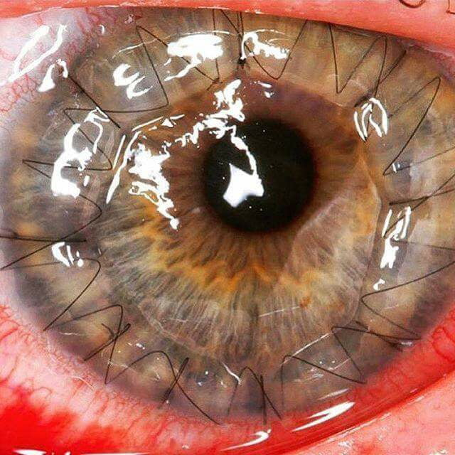 Eye sutures after corneal transplant surgery.