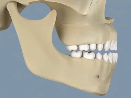LeFort osteotomy and BSSO to correct jaw deformities