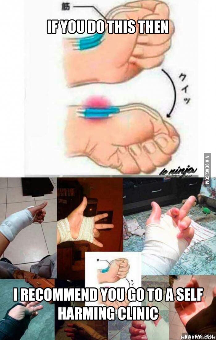 Как лечить сломанный палец в домашних условиях