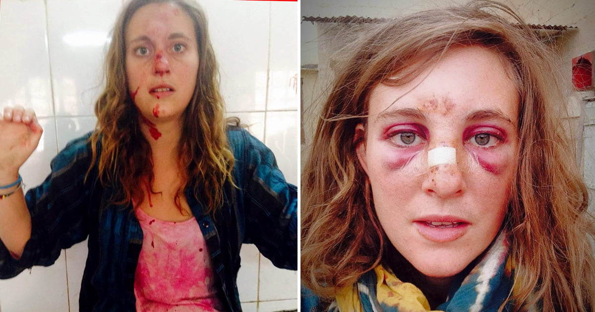 Cow Attacks Backpacker For Singing Black Eyed Peas Tune