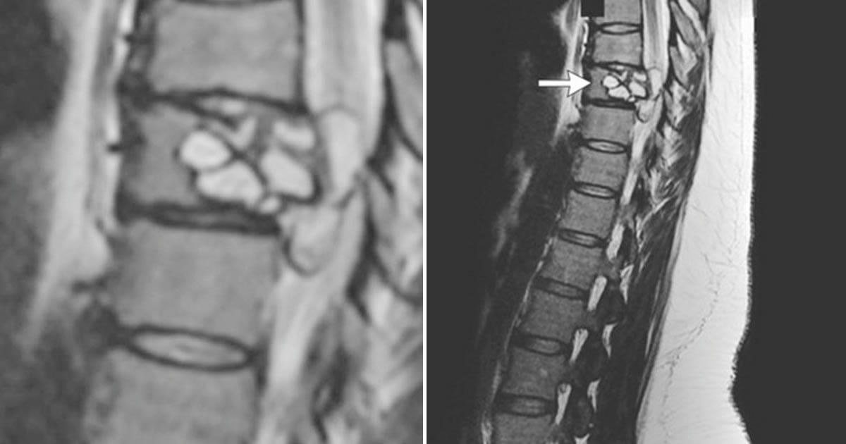 Tingling In Woman's Leg Turns Out To Be Dog Tapeworm Lodged In Her Spine