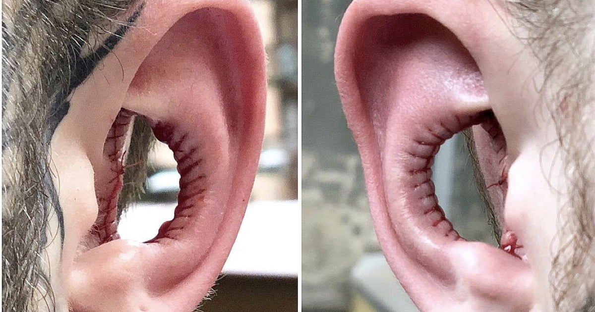 Man Has Inside of His Ears Taken Out