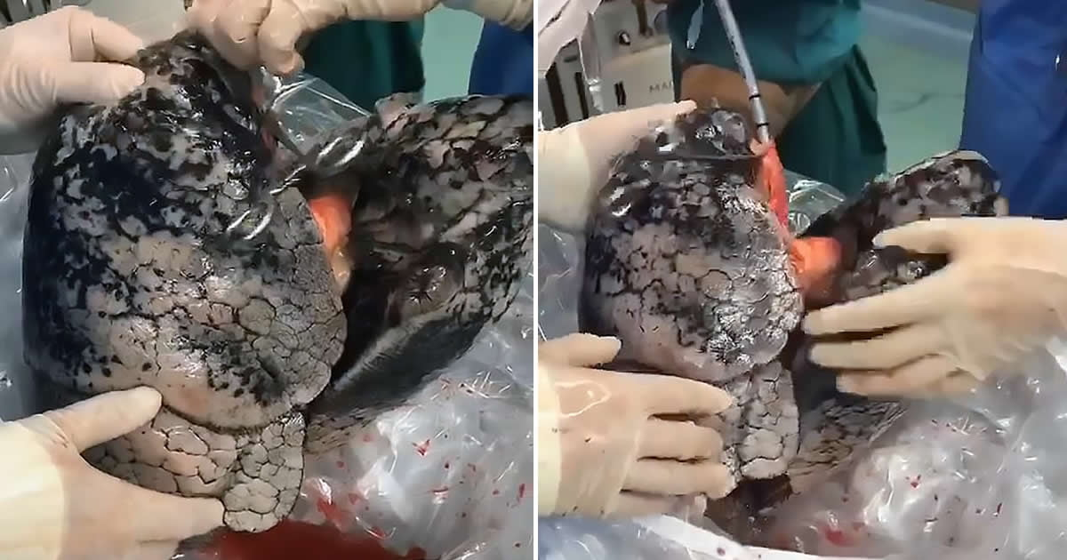 Graphic Video Shows Lungs Charcoaled After 30 Years Of Smoking