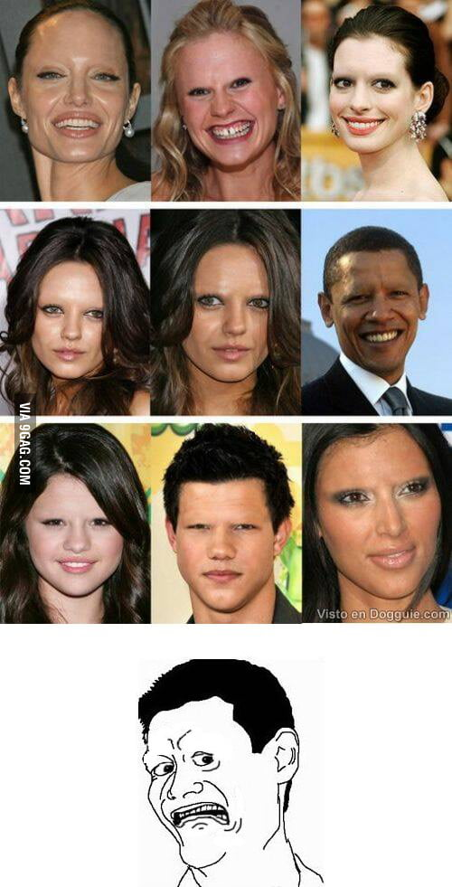 What would we look like without eyebrows?