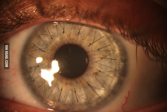 Eye stitches after cornea transplant...