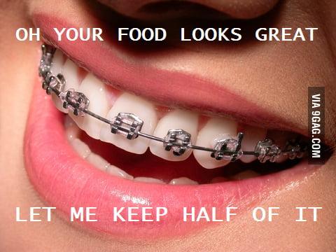 Scumbag braces