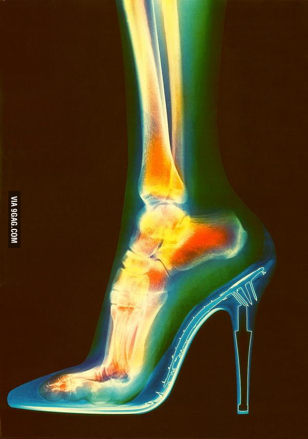 Hey ladies, you probably shouldn't wear heels.