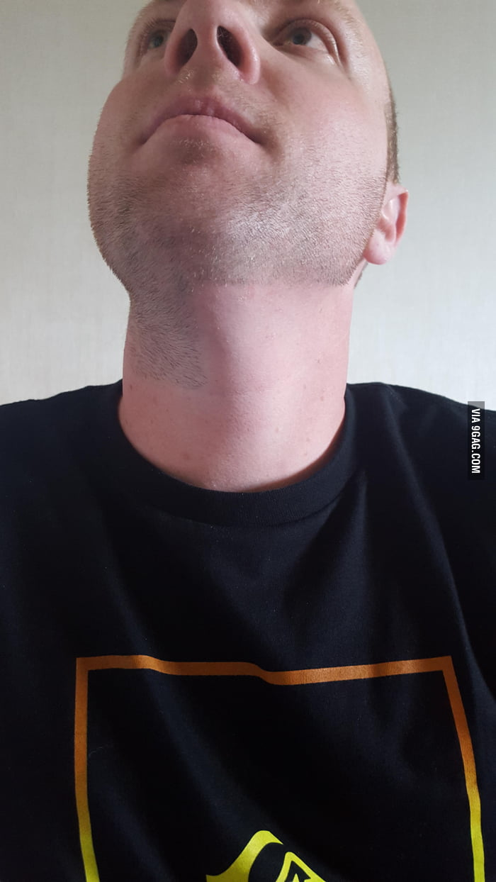 This Guy was treated for Hodgkins lymphoma in his neck