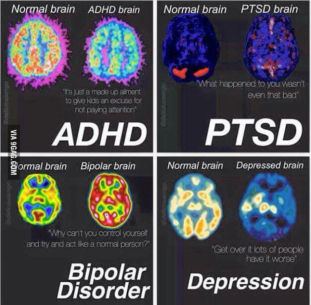 ADHD PTSD Bipolar Disorder And Depression Brains Vs Free