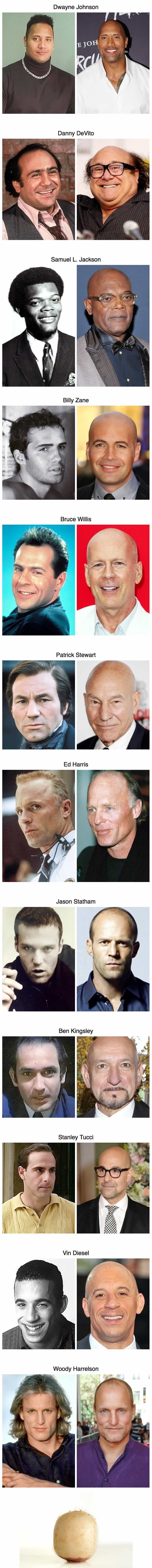 How These 12 Famous Actors Looked Before Going Bald