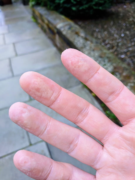 After A Day Of Cleaning With Bleach And No Gloves My