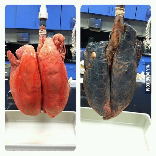 Non-smoker and smoker lungs