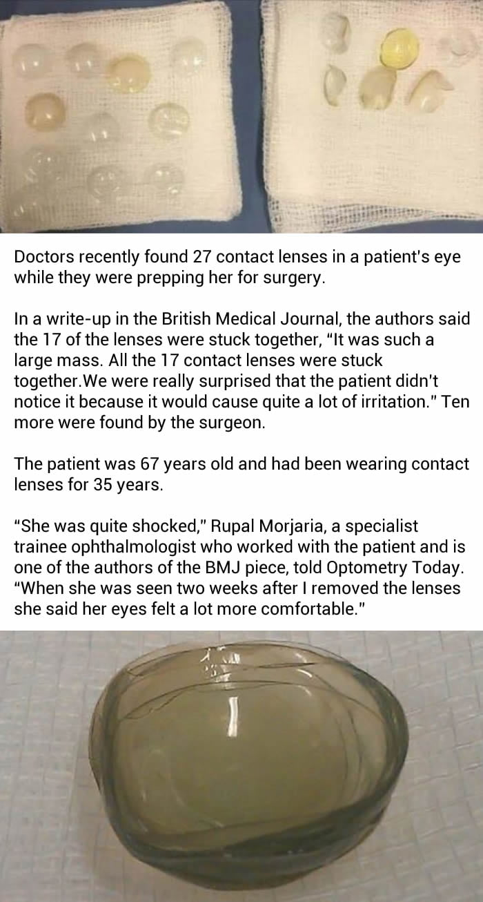 a1db51b28b1 Doctors found 27 contact lenses in a woman s eye
