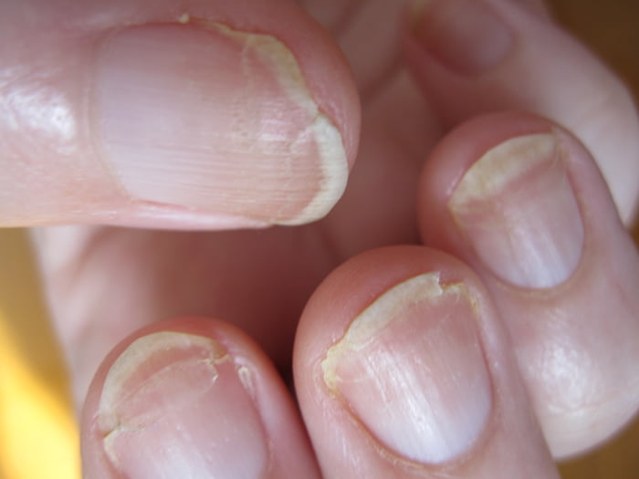 Cracked Or Brittle Nails Can Be A Sign That The Nail Plate Is Extremely Dry Condition Has Also Been Linked To Thyroid Disease