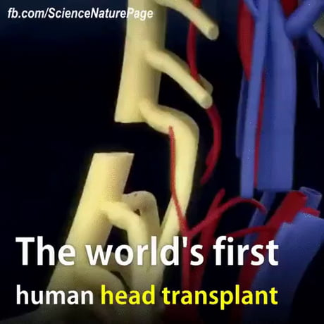First human head transplant is scheduled to take place this year