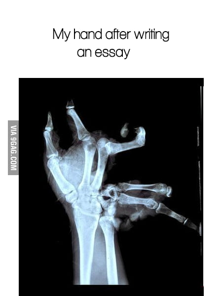 My Hand After A Very Long Essay About Christmas Break  Gag My Hand After A Very Long Essay About Christmas Break Examples Of Thesis Statements For Argumentative Essays also Business Plan Writers In Delhi  How To Write A Proposal Essay Outline
