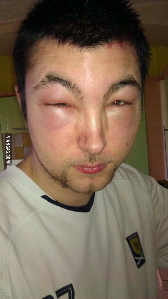 Had A Slight Allergic Reaction To Hair Dye 9gag