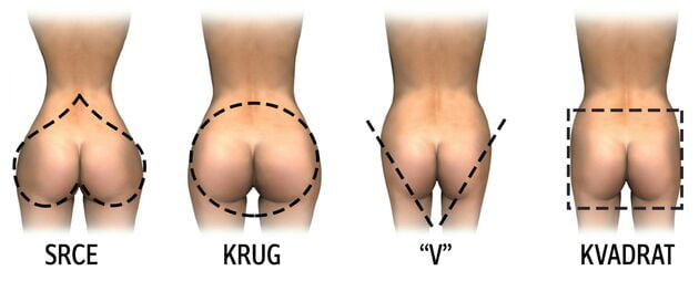Different Types Of Ass 46