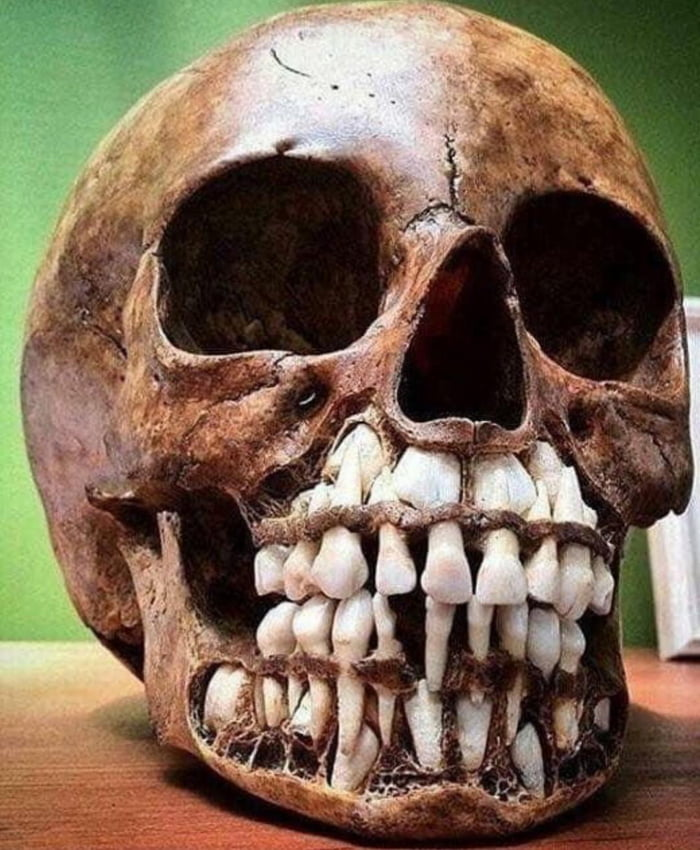 Picture Of A Child S Skull With Adult Teeth Waiting To Replace