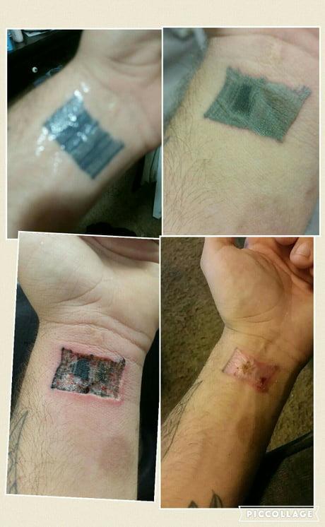 Diy Tattoo Removal Was A Bad Idea Used A Tria Laser 9gag