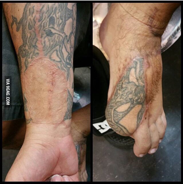 A Piece Of This Guys Tattoo Was Transferred From His Wrist To