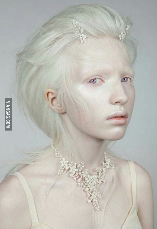 Hot albino girls pictures