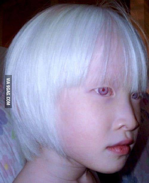 An asian albino. Now I can die peacefully. - 9GAG