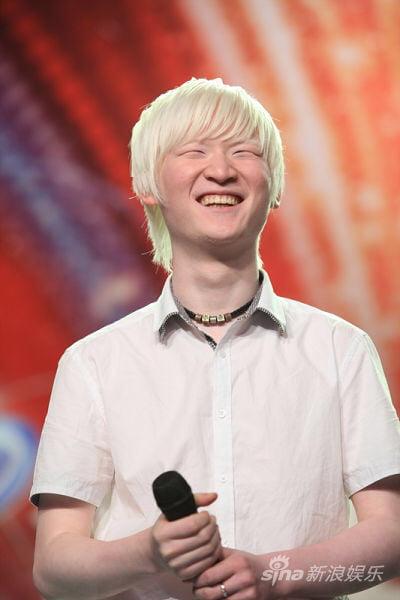 Albino asian
